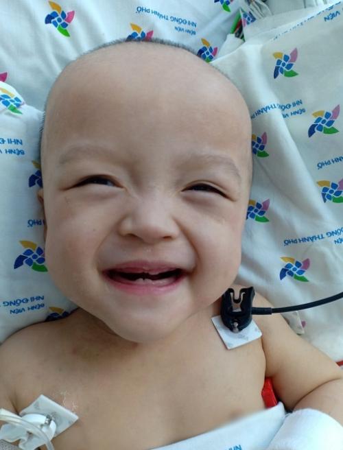 Sau 19 ngày cạo sạch tóc để phẫu thuật, tóc Diệu Nhi đã mọc lại. Ảnh Nguyễn Lan Anh