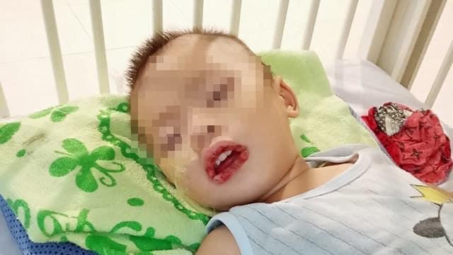 Bé nhập viện trong tình trạng miệng họng có nhiều vết trợt loét. Ảnh: Bệnh viện cung cấp.