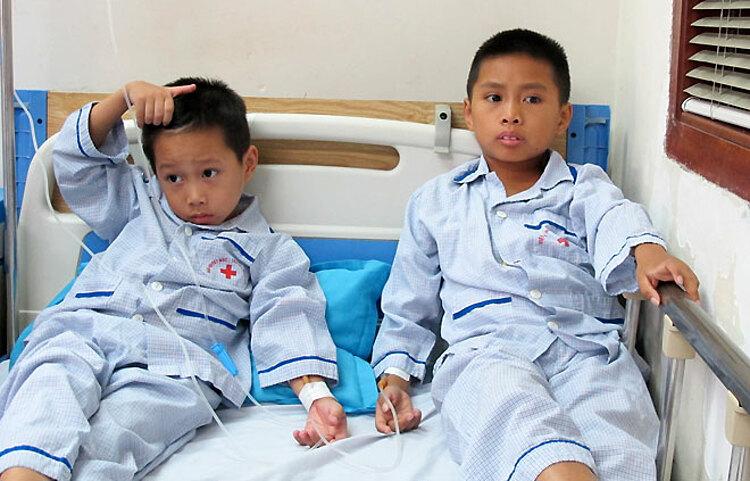Bệnh nhân tan máu bẩm sinh được truyền máu tại Bệnh viện. Ảnh: Nam Phương