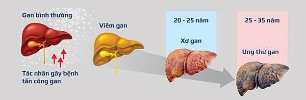 Các giai đoạn tiến triển của viêm gan.