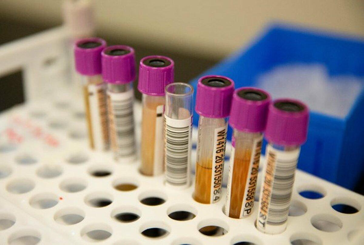 Kháng thể người từng mắc Covid-19 tại phòng thí nghiệm Bloodworks Northwest, Mỹ. Ảnh: Reuters