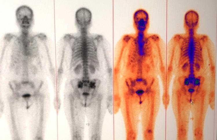 Hình ảnh ung thư di căn xương vùng chậu. Ảnh: Mạc Thảo