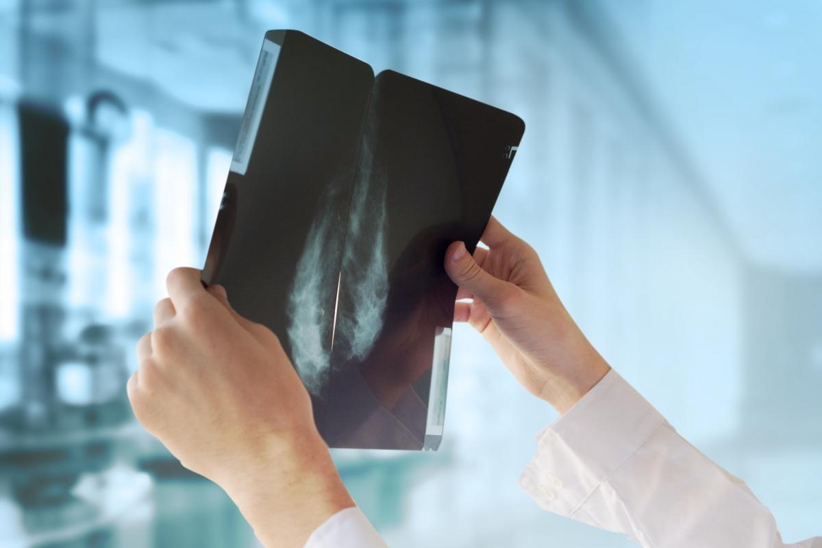 Hình ảnh chụp quang tuyến vú tầm soát ung thư. Ảnh: Shutterstock