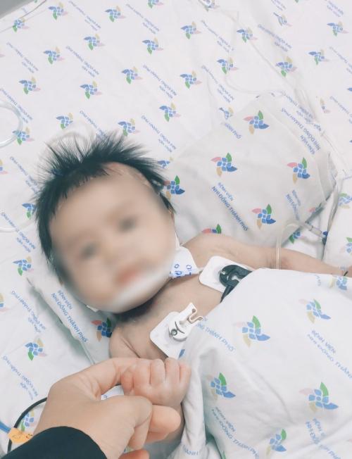 Bé trai xanh tím người vì ngộ độc nitrite - 2