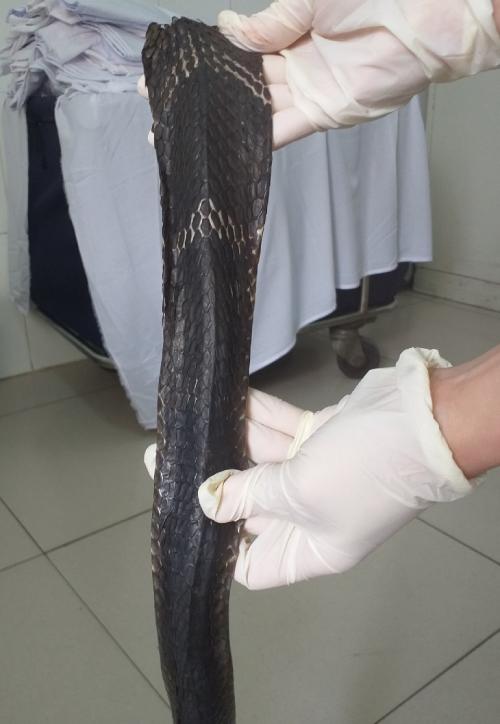 Phần thân rắn hổ mang chúa người nhà mang đến bệnh viện. Ảnh: Bệnh viện cung cấp.