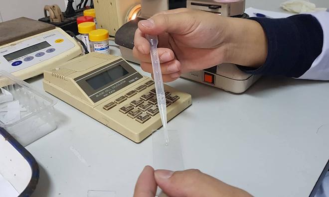 Bác sĩ xét nghiệm mẫu tinh trùng tại Bệnh viện Đại học Y Hà Nội. Ảnh: Lê Nga.