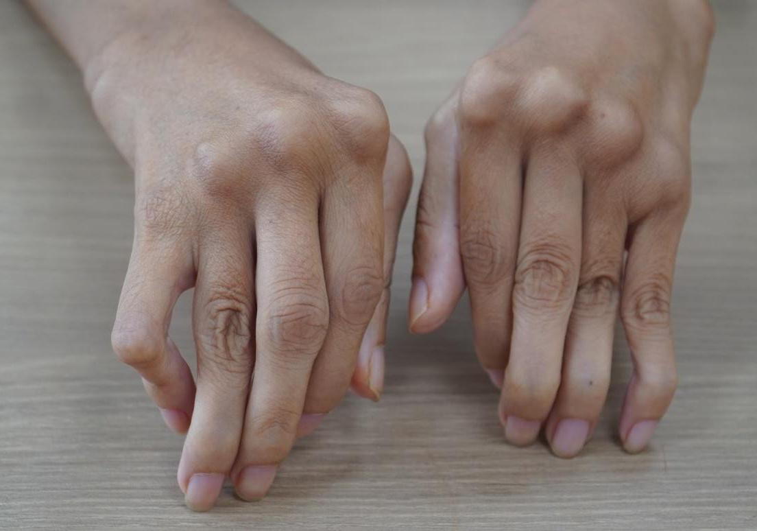 Đôi bàn tay co quắp của chị Trần Thị Ánh trước khi phẫu thuật. Y văn gọi là bàn tay gió thổi và mu bàn tay hình lưng lạc đà. Ảnh: Bệnh viện Tâm Anh cung cấp.