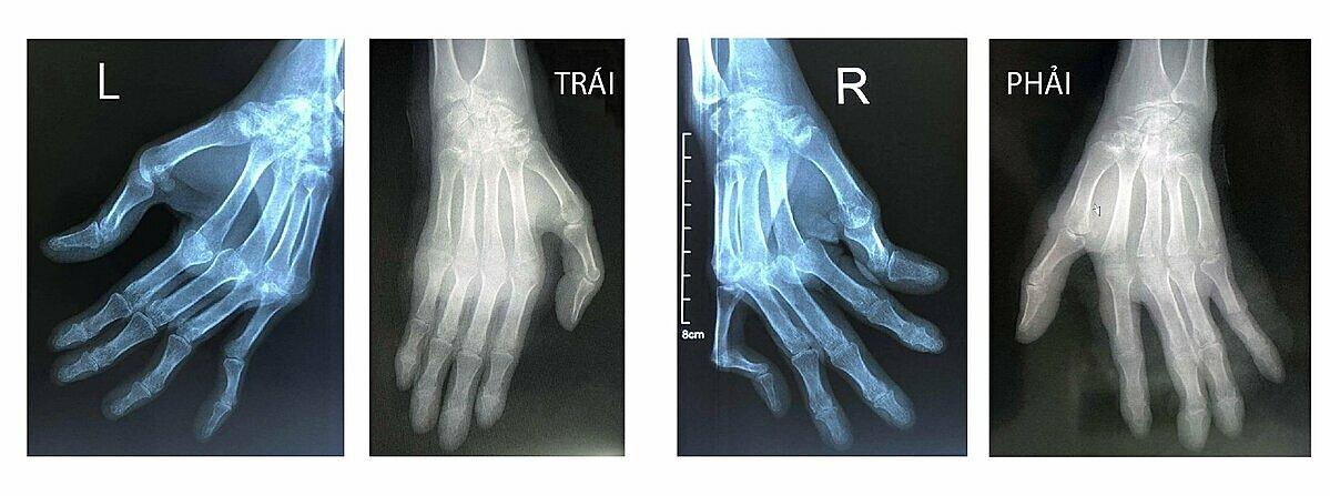 Nhìn hình ảnh X-quang bàn tay bệnh nhân trước và sau ca mổ, Phó giáo sư Trần Trung Dũng cho biết bệnh nhân đã phục hồi lại trục các khớp, cân bằng phần mềm; đảm bảo cho ngón tay cử động như bình thường. Ảnh: Bệnh viện Tâm Anh cung cấp.