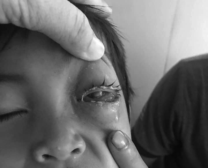 Bệnh nhi nguy cơ hỏng mắt do cò mổ. Ảnh: Long Nhật.