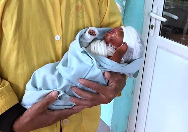 Bé sơ sinh trong ngày xuất viện. Ảnh: Bệnh viện cung cấp