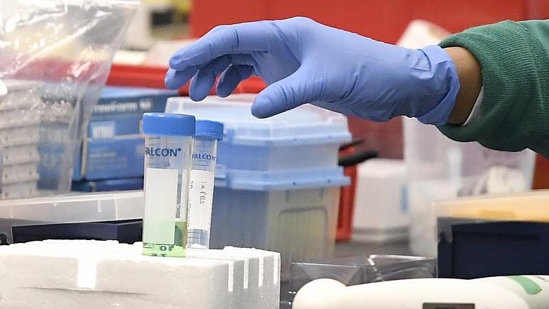 Một nhiên viên nghiên cứu đang với lấy lọ thí nghiệm chứa mẫu thử vaccine trong phòng thí nghiệm ở Meriden, Connecticut, Mỹ, ngày 12/3. Ảnh: Jessica Hill/AP.