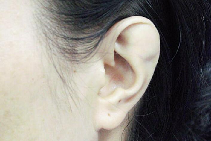 Vành tai bất thường của người phụ nữ trước mổ. Ảnh: Bệnh viện cung cấp.