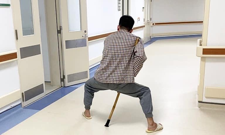 Bệnh nhân viêm cột sống dính khớp biến dạng nặng nề, 2 chân khuỳnh, xoay ra ngoài ( trước mổ). Ảnh: Bệnh viện cung cấp.