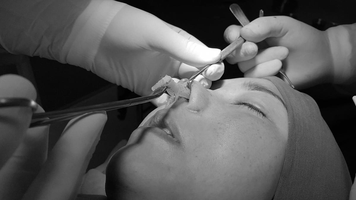 Bác sĩ rút khối sụn nhân tạo khỏi mũi bệnh nhân. Ảnh: Việt Sương.