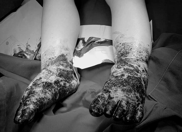 Bàn chân nhiễm trùng nặng của bệnh nhi. Ảnh: Bệnh viện cung cấp