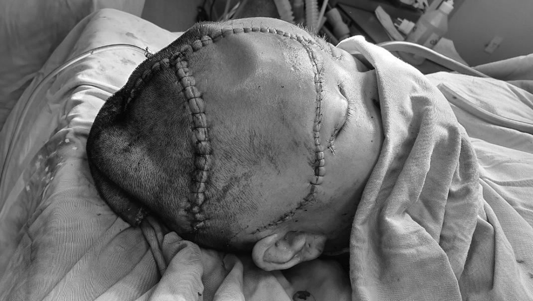 Bác sĩ khâu, tái tạo lại vùng da đầu bị lóc. Ảnh: Long Nhật.