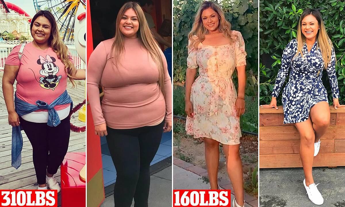 Natalie lột xác giảm 68kg sau khi phẫu thuật cắt 80% dạ dày. Ảnh: Daily Mail.