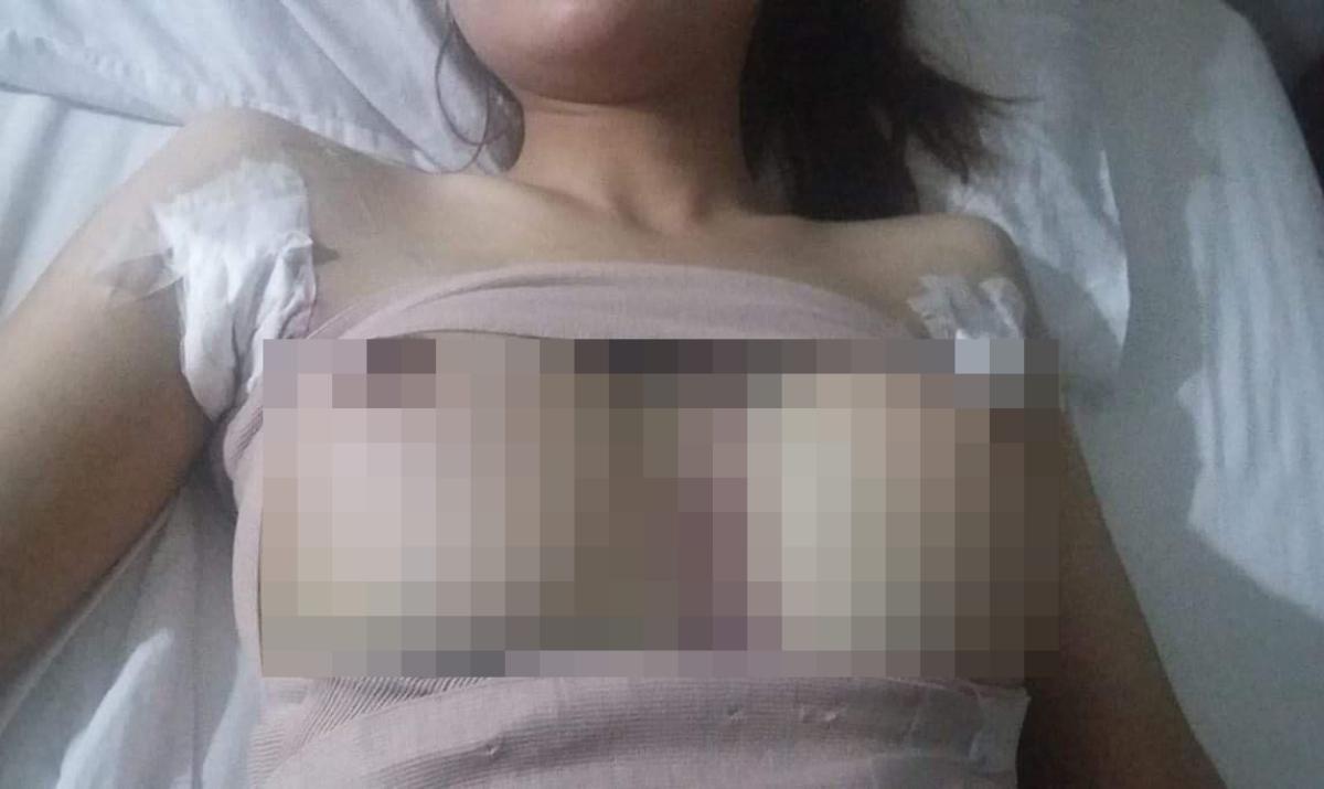 Hai lần trải qua đau đớn, tốn kém tiền bạc, Trinh vẫn chưa có bộ ngực con gái bình thường như mơ ước. Ảnh: Nhân vật cung cấp.