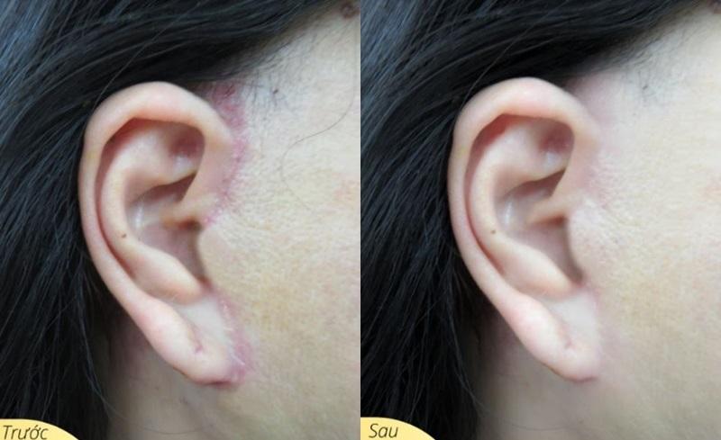 Căng da đúng kỹ thuật giúp hạn chế sẹo, sẹo mờ, đẹp sau 1 tháng .