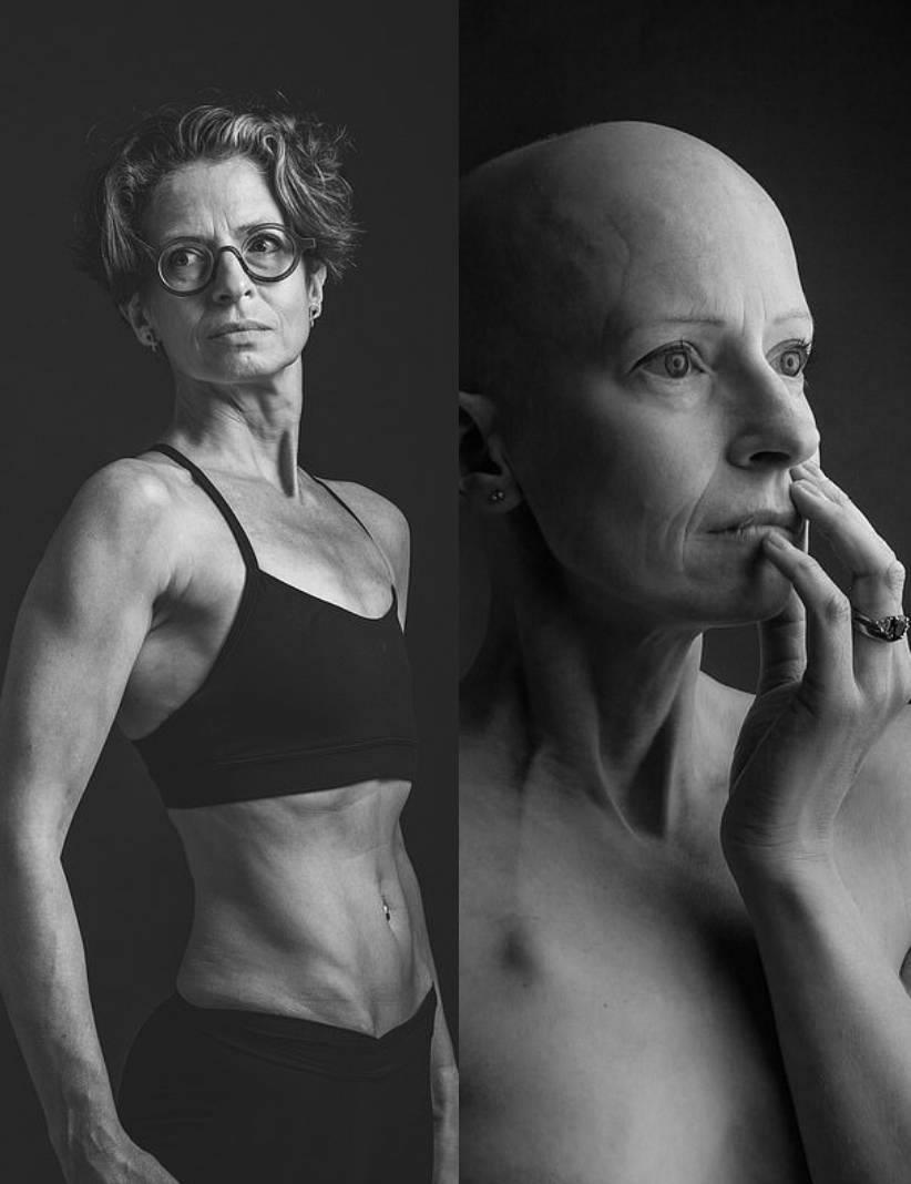 Liz ORiordan, ảnh phải, khi mới phát hiện mắc ung thư vú. Ảnh trái, cô chụp trong năm 2020. Ảnh: NVCC