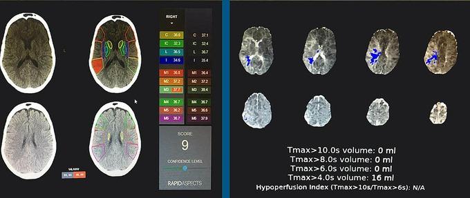 Phần mềm RAPID ứng dụng trí tuệ nhân tạo trong chẩn đoán, điều trị đột quỵ, được áp dụng tại một số bệnh viện ở Việt Nam. Ảnh do bệnh viện cung cấp.