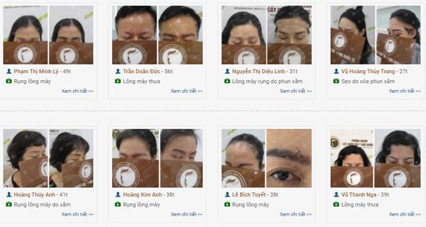 Những trường hợp cấy ghép lông mày giúp cả nam lẫn nữ tự tin hơn với vẻ ngoài.