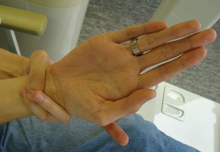 Hội chứng Marfan khiến kích thước chiều dài chi thể, cơ thể tăng một cách nhanh bất thường. Ảnh: Medical News Today