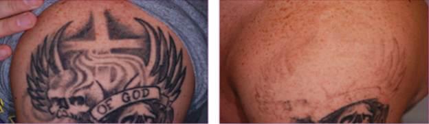 Xóa xăm trước và sau khi trị laser.