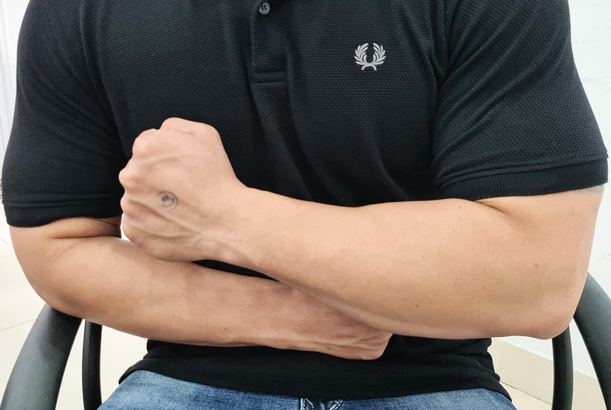 Bệnh nhân vạm vỡ, cơ bắp sau một thời gian tập gym kết hợp tiêm testosterone. Ảnh: Tan Le.