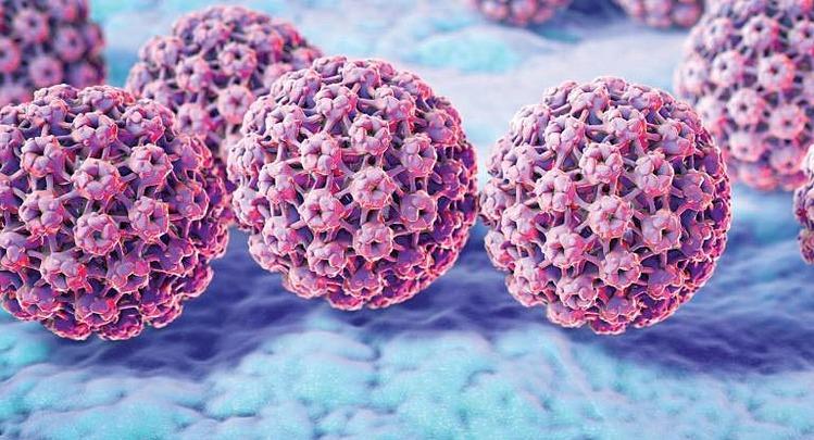 Sùi mào gà do virus HPV gây ra. Ảnh: Guardian