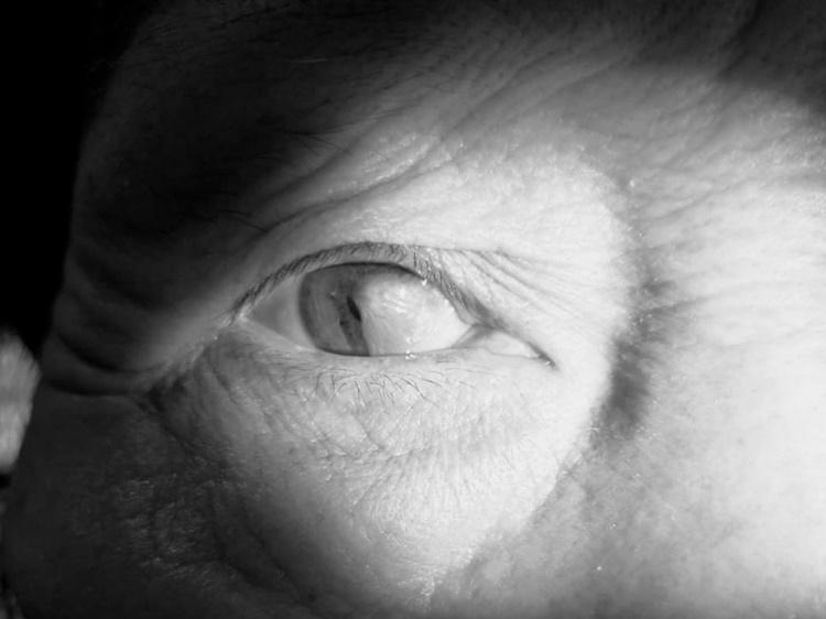 Mộng mắt che kín đồng tử bệnh nhân. Ảnh: Bệnh viện cung cấp