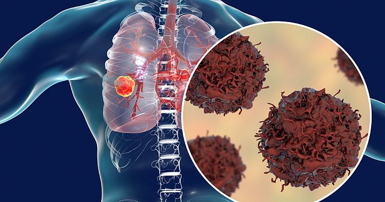 Ung thư phổi đứng thứ 2 sau ung thư gan ở Việt Nam. Ảnh: Pinterest
