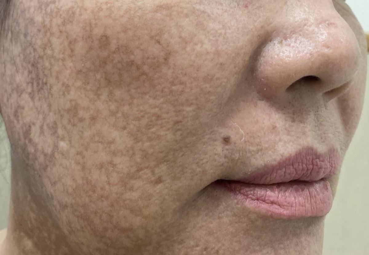 Vùng da mặt bệnh nhân bị mất sắc tố do tẩy trắng cấp tốc bằng thuốc rượu. Ảnh: Bác sĩ cung cấp
