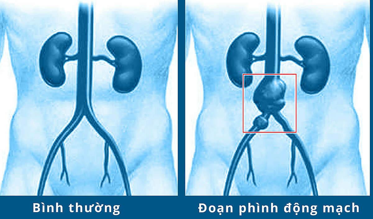 Động mạch chủ bình thường và khi có túi phình.