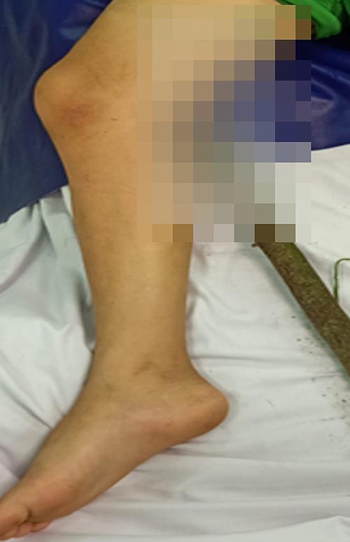 Người nhà đưa bé trai đến bệnh viện cấp cứu cùng với đoạn chanh đang đâm xuyên đùi. Ảnh do bệnh viện cung cấp.