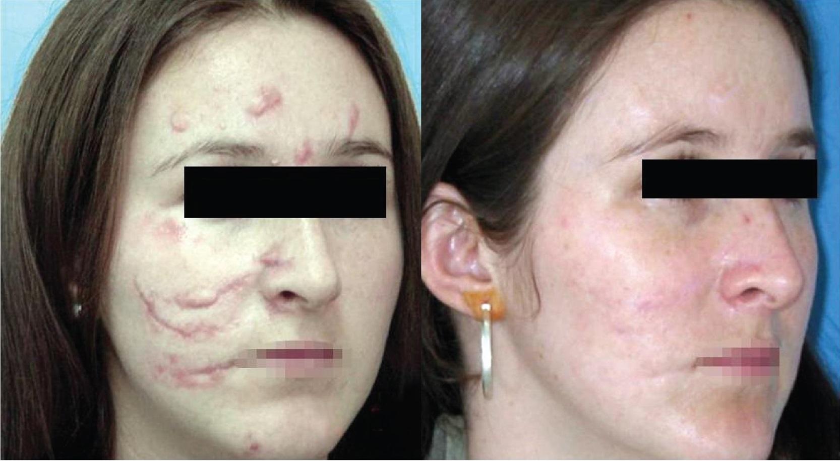 Trước và sau 9 tháng trị sẹo lồi bằng laser eCO2.