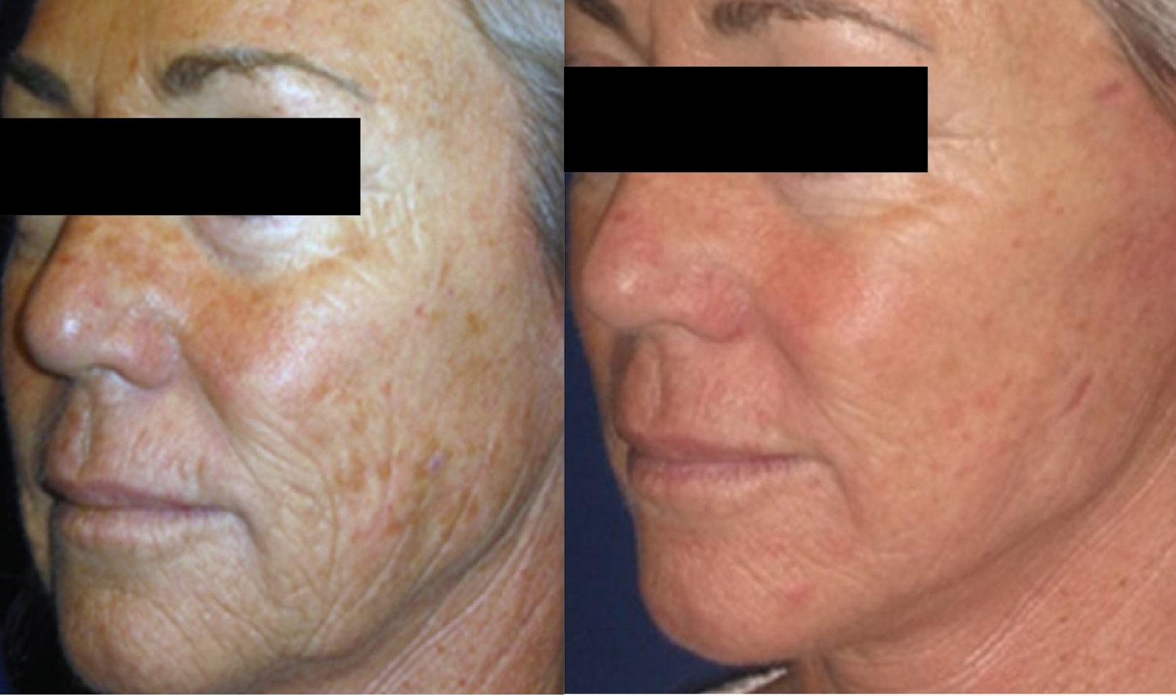 Trước và sau trị liệu xóa nhăn, sắc tố bằng laser eCO2.