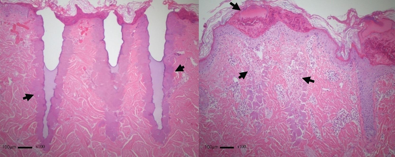 Cấu trúc da sau hai ngày trị liệu sẹo bằng eCO2.