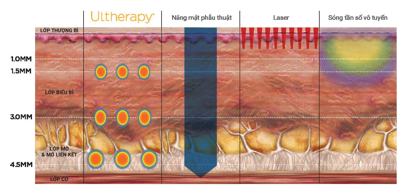 Công nghệ Ultherapy đạt đến độ sâu tương đương phẫu thuật thẩm mỹ.