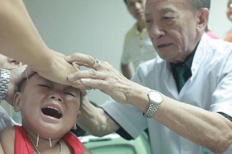 Giáo sự Nguyễn Tài Thu châm cứu cho bệnh nhân. Ảnh: Tư liệu gia đình cung cấp