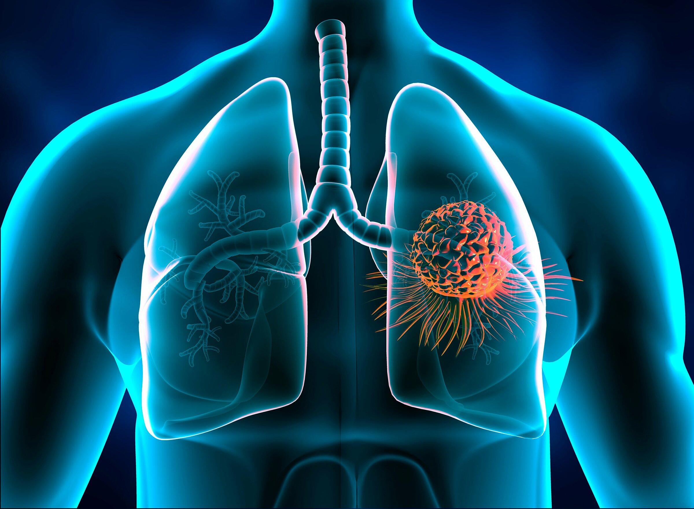 Ung thư phổi là bệnh phổ biến, thường có triệu chứng không rõ ràng ở giai đoạn đầu. Ảnh: Shutter stock.