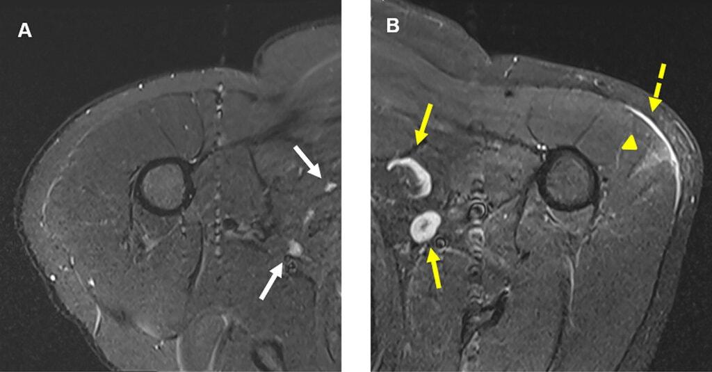 Hình chụp quang tuyến vú của một người đàn ông sau khi tiêm vaccine Covid-19, các hạch bạch huyết trắng được hiển thị. Ảnh: Radiology 2021