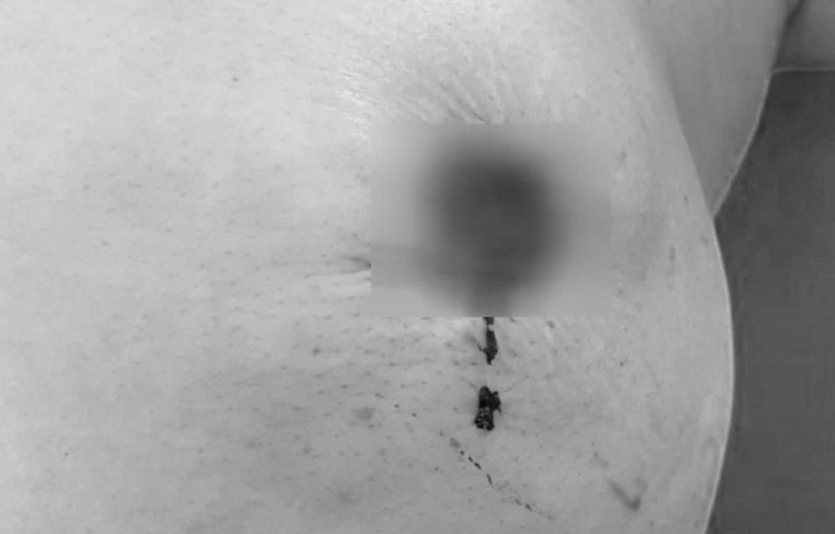 Bệnh nhân bị rụng núm vú khi dùng thuốc nam chữa ung thư, nay phải phẫu thuật đoạn nhũ. Ảnh: Bệnh viện cung cấp.
