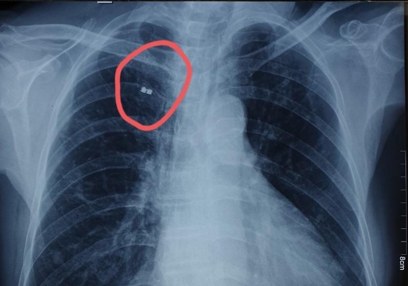 Hình ảnh chụp X-quang mảnh bom trong lồng ngực nam bệnh nhân. Ảnh: Bệnh viện cung cấp