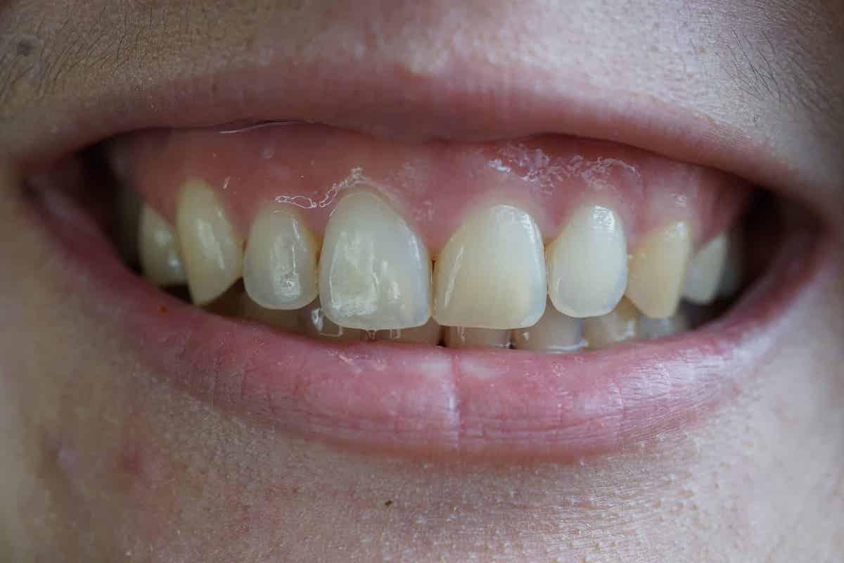 Cười hở lợi là tình trạng lợi hở ra trên 2mm khi cười. Ảnh. Gocare