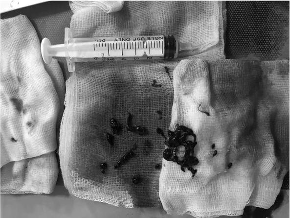 Các bác sĩ đã can thiệp hút ra rất nhiều cục máu đông trong mạch não bệnh nhân. Ảnh: Bệnh viện cung cấp