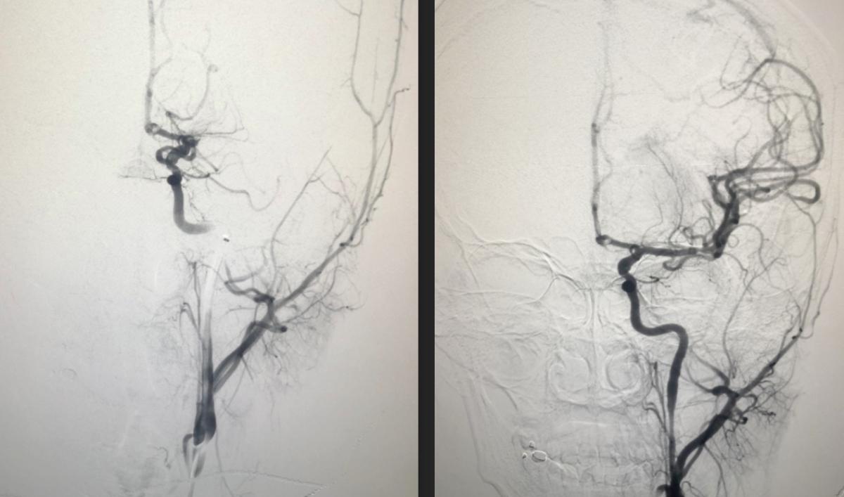Mạch máu não của cô gái trước khi can thiệp (trái) và sau khi can thiệp đã tái thông (phải). Ảnh: Bệnh viện cung cấp.