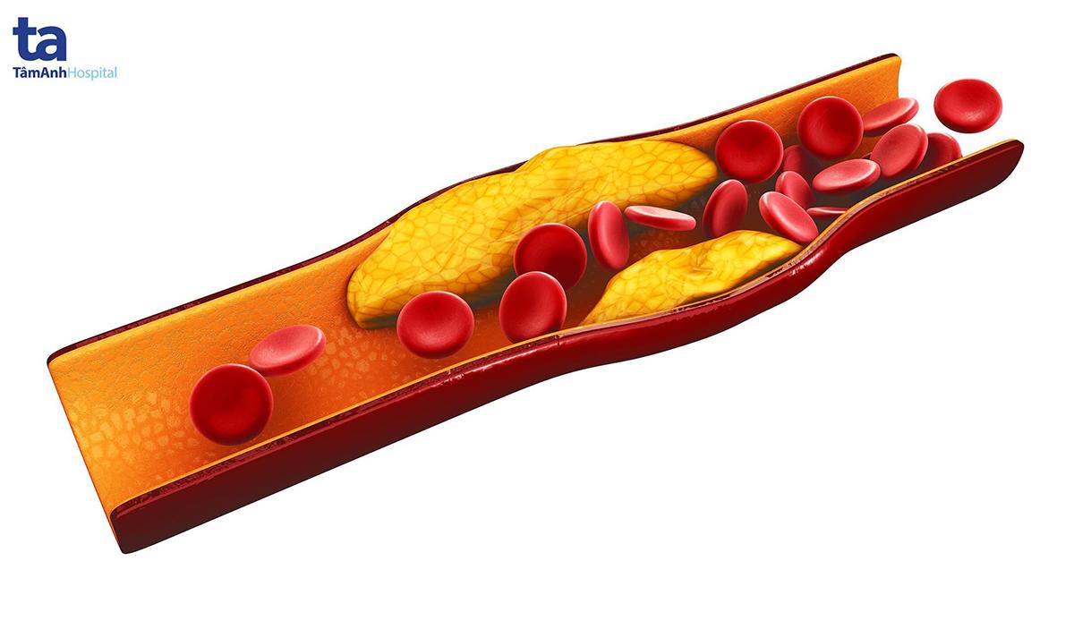 Cholesterol tích tụ tạo nên các mảng bám trong thành động mạch, gây tắc nghẽn và dẫn tới hẹp hoặc tắc mạch vành.