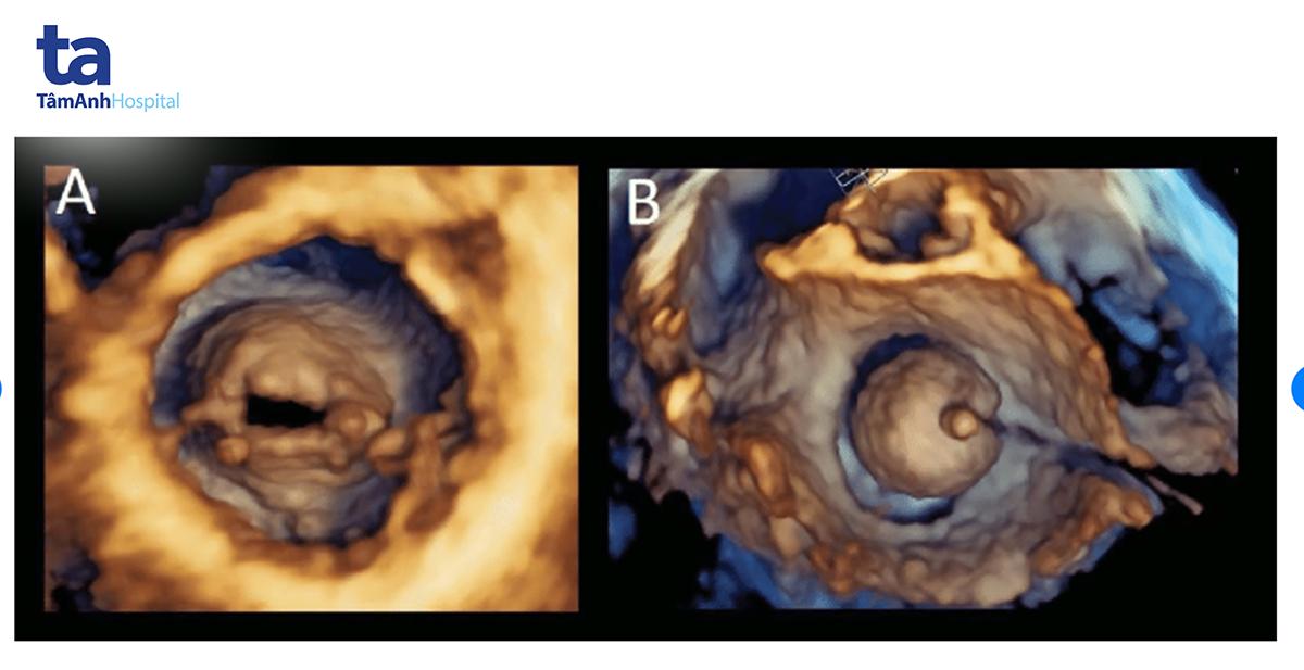 Hình A là hẹp van hai lá trên siêu âm tim 3D và hình B là nong van hai lá bằng bóng.