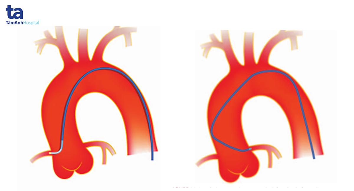 Mô tả kỹ thuật chụp mạch vành phải và trái qua đường động mạch đùi.